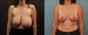 Breast Reduction  before 160575