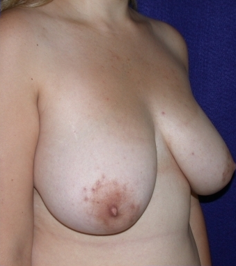 Breast Reduction before 520394