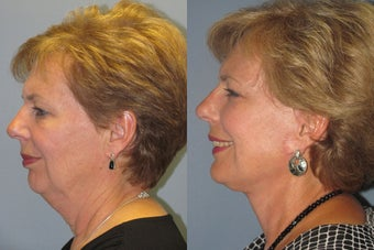 Lite Lift™, liposuction of the neck, lower eyelid lift before 523518
