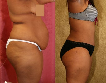 tummy tuck after 304683