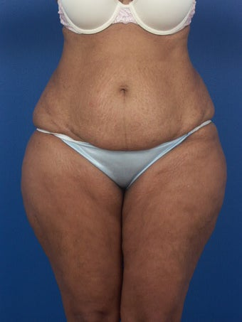 Tummy Tuck  before 471743