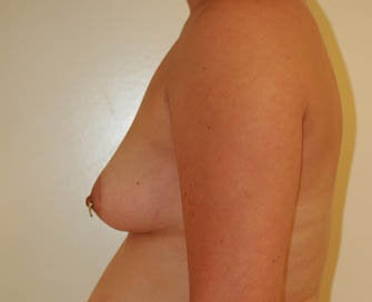 Augmentation Mammaplasty (Breast Implants) before 226493