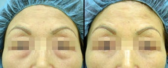 Lower Eyelid(Blepharoplasty) Surgery before 652278