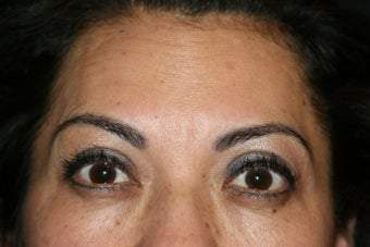 Botox after 584362