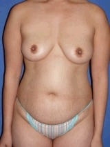 Tummy Tuck Surgery (abdominoplasty) and Breast Implants before 139135