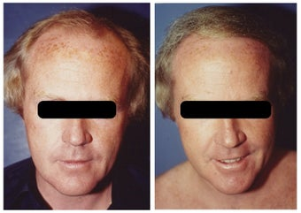 hair transplant before 369162