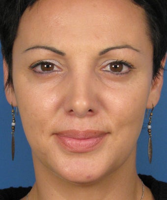 Revision Rhinoplasty after 410783
