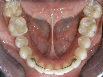 Invisalign after 273892
