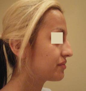 Rhinoplasty  before 137956