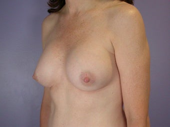 Breast Implants  after 305409