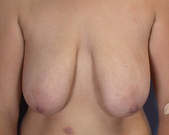 Breast Reduction before 285298