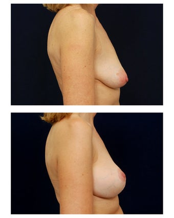 Breast Augmentation with Lift 374950