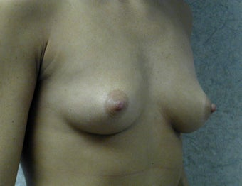 Breast augmentation 409968