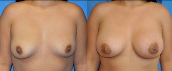 Flash Recovery Breast Augmentation (TM) before 256397