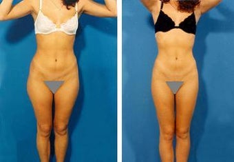 Liposuction before 636260