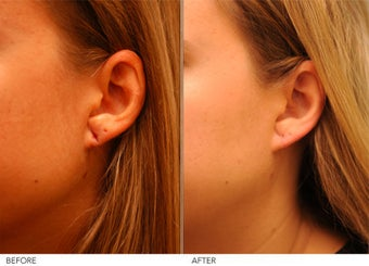 Earlobe Repair- left before 291709