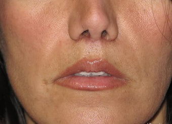 Lip lift - permanent lip enhancement after 571634