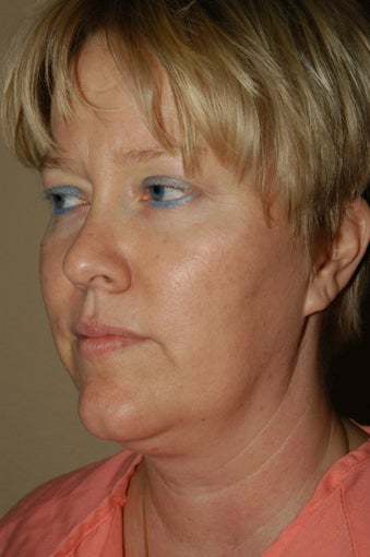 RefresherFacelift w/Neck Plication, Browllift, Fat Injections to Cheeks & Lips before 252901