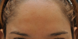 Botox to forehead and glabella after 426035