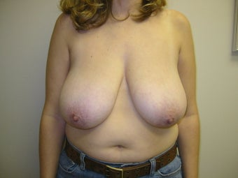 Breast Reduction before 273940