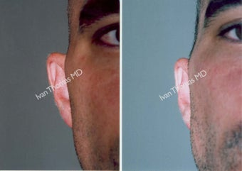 Ear Surgery - Otoplasty before 243393