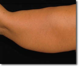 Laser Liposuction before 650394
