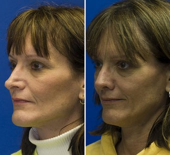 Revision Rhinoplasty after 295349