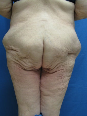 Circumferential Body Lift 364633