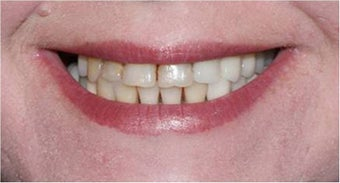 Smile Makeover with crowns and veneers before 367209