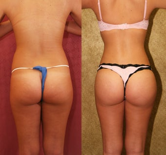 Brazilian Buttock Augmentation with microfat grafting before 453361