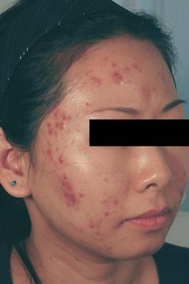Laser Acne Treatment before 82971