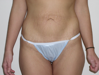Tummy Tuck before 410415