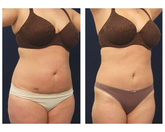 Liposuction after 397041