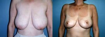 Breast Reduction & Mammoplasty before 348006
