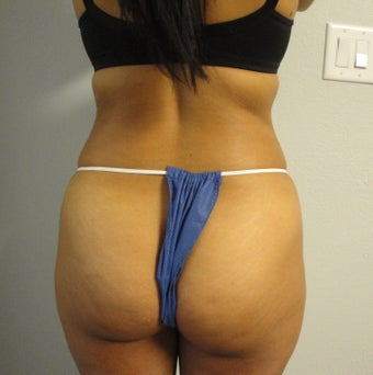 Gluteal Augmentation before 560806