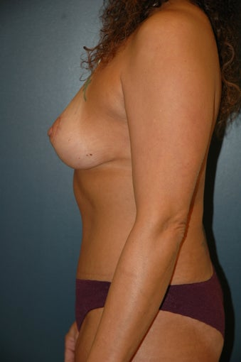 Breast lift and tummy tuck after 238294