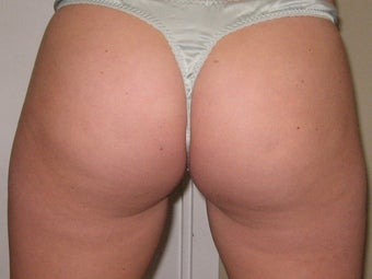 Thermage for Cellulite after 272092