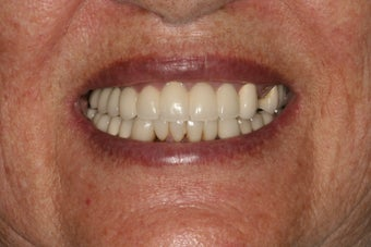 Dental implants and PFM bridge after 467144