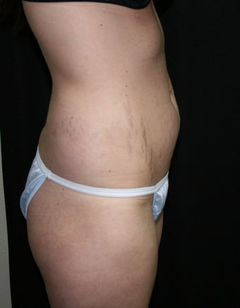 Abdominplasty (mini tummy tuck) before 263059