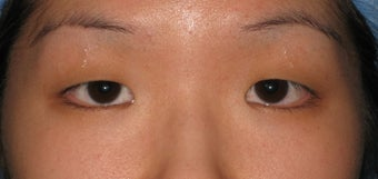 Double eyelid surgery by CO2 laser before 259535