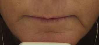Fraxel re:pair for upper lip lines after 1 treatment after 121891