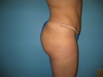 buttock augmentation (Brazilian buttock lift) after 284920