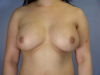 Breast Implants  after 305415