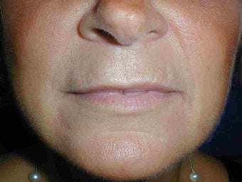 Juvederm to upper lip before 108815