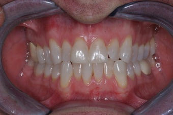 Invisalign before 372772