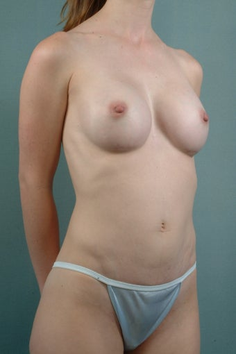 Breast Augmentation after 240152