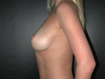 Breast Augmentation  before 110082