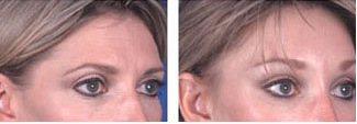 Brow lift at age 39 after 6652