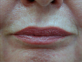 CO2 Fractional Laser Around Lips after 459874