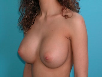Flattering Breast Augmentation with Saline Implants after 266921